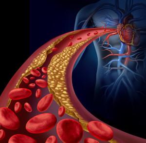 damar-hastaliklari-1